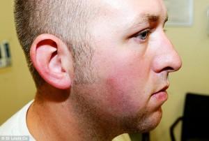 Darren Wilson montrant ses blessures après son altercation avec Michael Brown