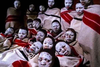 Critiques contre la circoncision : entre impérialisme culturel et préoccupations sanitaires