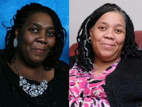 Atteinte du cancer, Paula Edwards devient progressivement blanche de peau