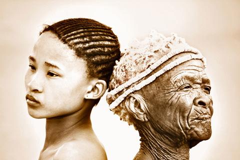 Le soleil endommage aussi la peau des Noir.e.s, selon une étude