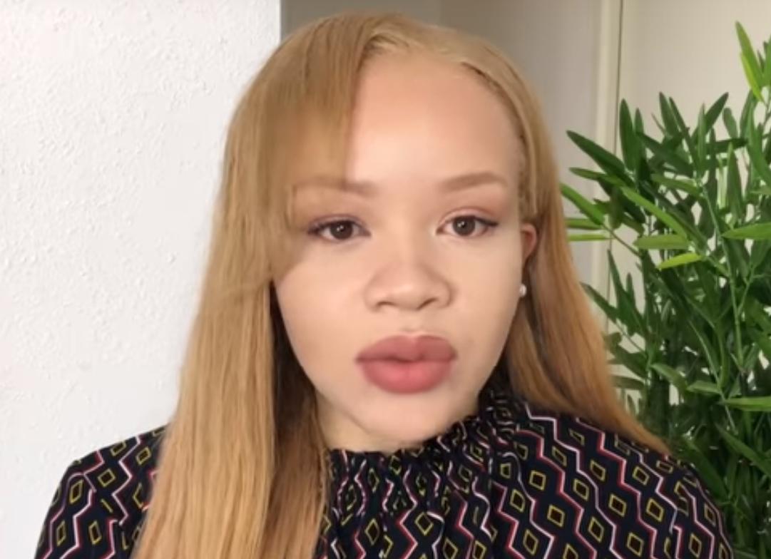 Cette youtubeuse met à plat les clichés sur l'albinisme