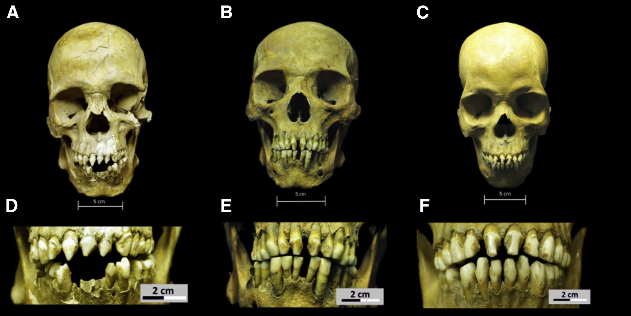 3 squelettes africains d'il y a 500 ans éclairent la présence noire au Mexique